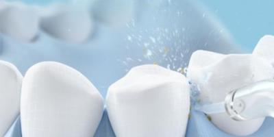 有哪些冲牙器品牌值得入手,冲牙器十大品牌