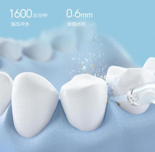 有哪些冲牙器品牌值得入手,冲牙器十大品牌 (https://www.cetpin.com/) 家居日用 第1张